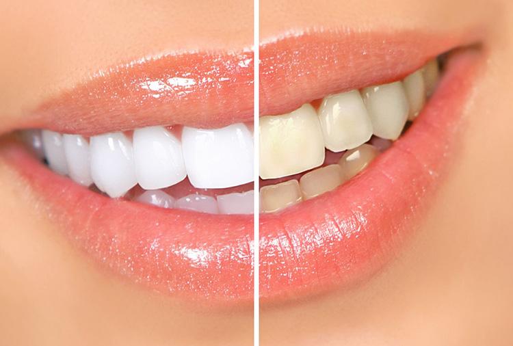 otbelivanie-zubov3