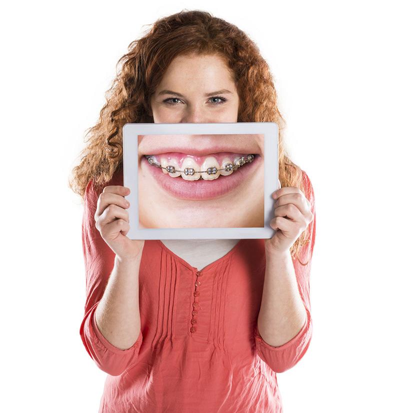 Отбеливающие зубные пасты принцип действия, ТОП лучших